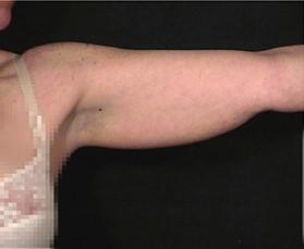 ניתוח מתיחת זרועות
