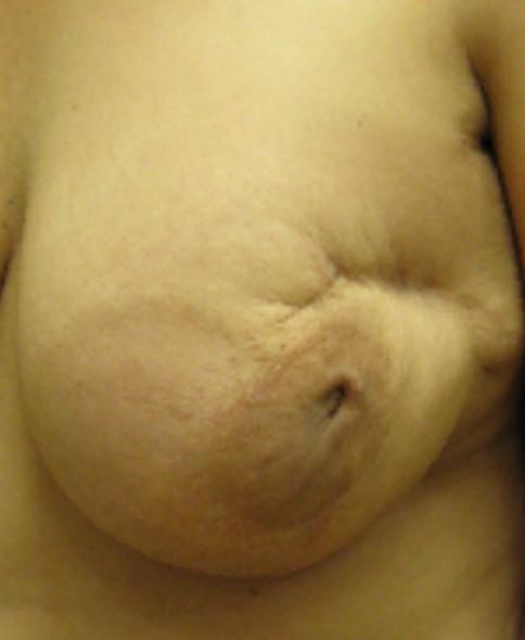 שחזור שד עם השתלת שומן